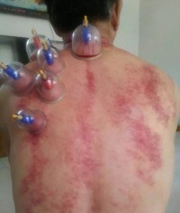 Cupping Therapy + Gua Sha Therapy