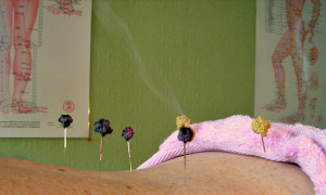 Indirect Moxibustion